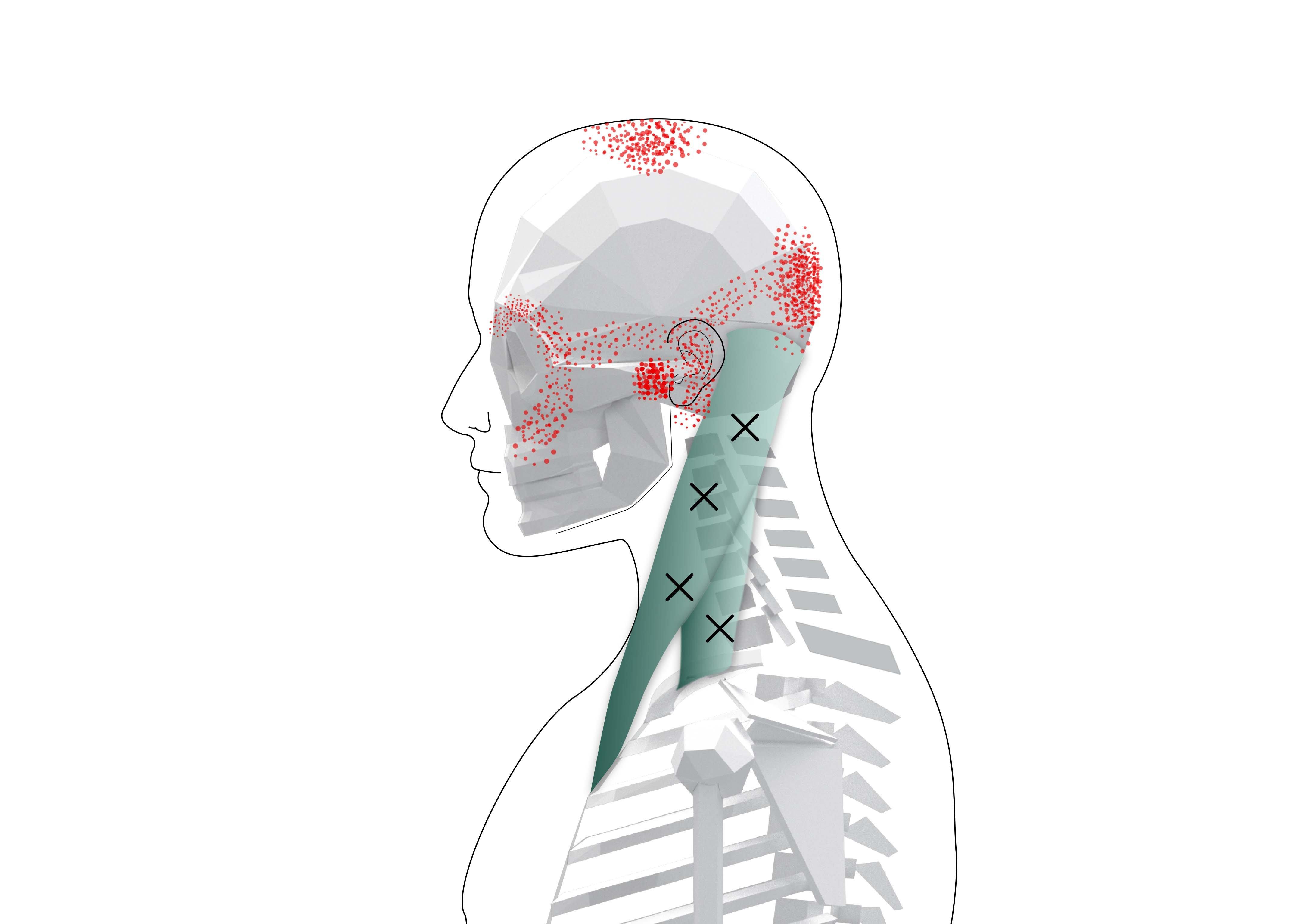 Sternocleidomastoid Trigger Points