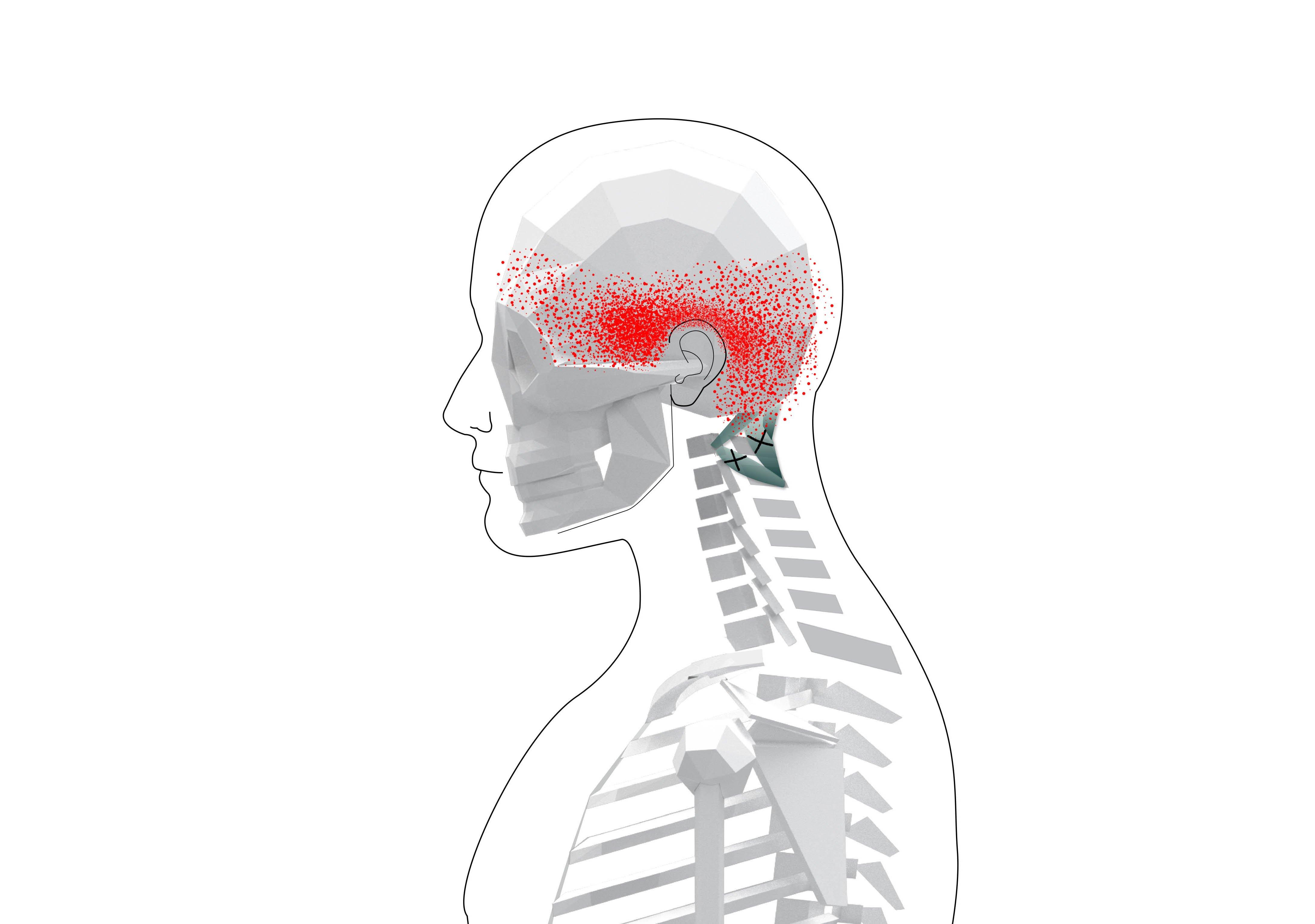 Suboccipitals Trigger Points