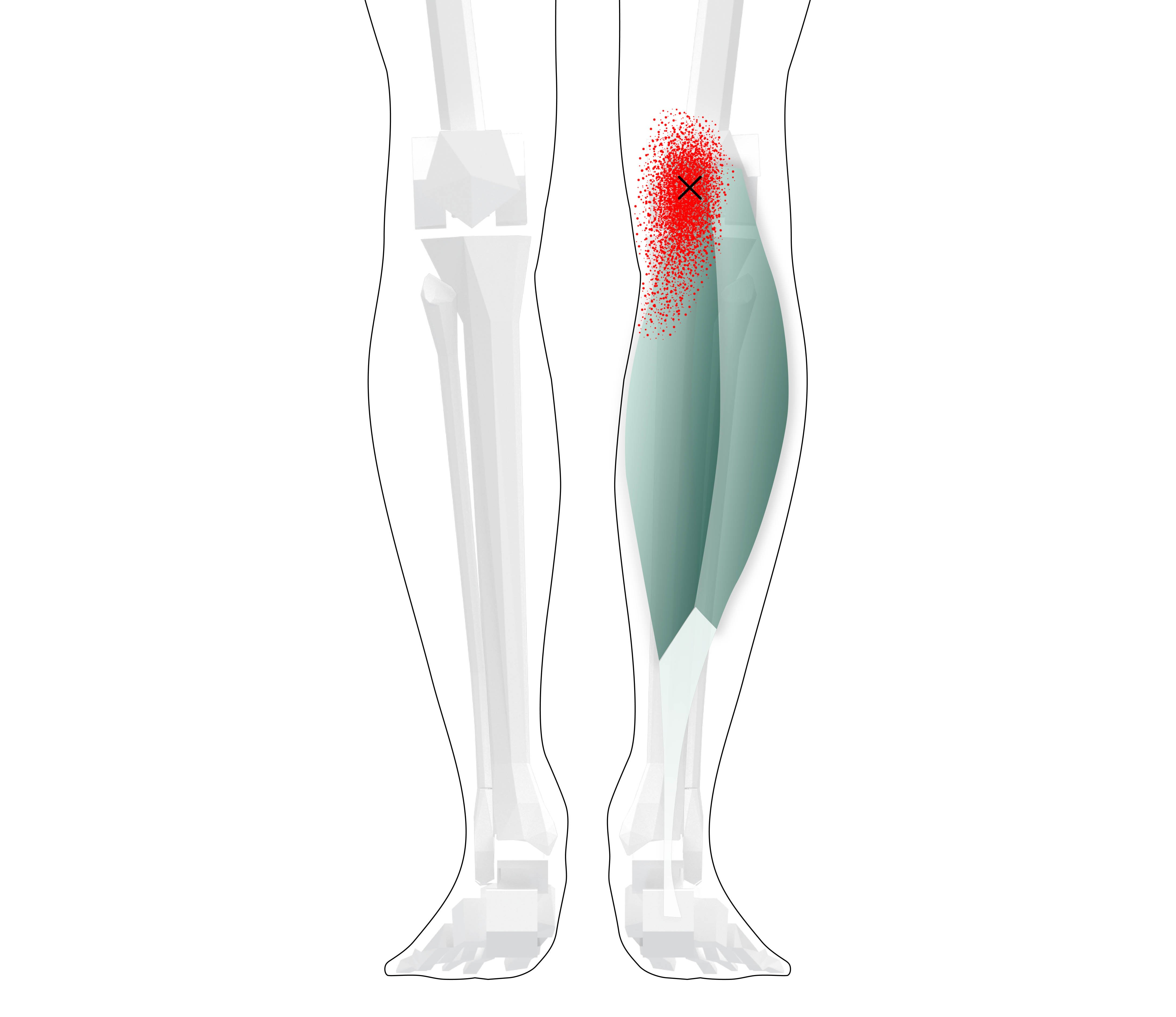 Gastrocnemius Trigger Points (Overview - Self Treatment Tips)