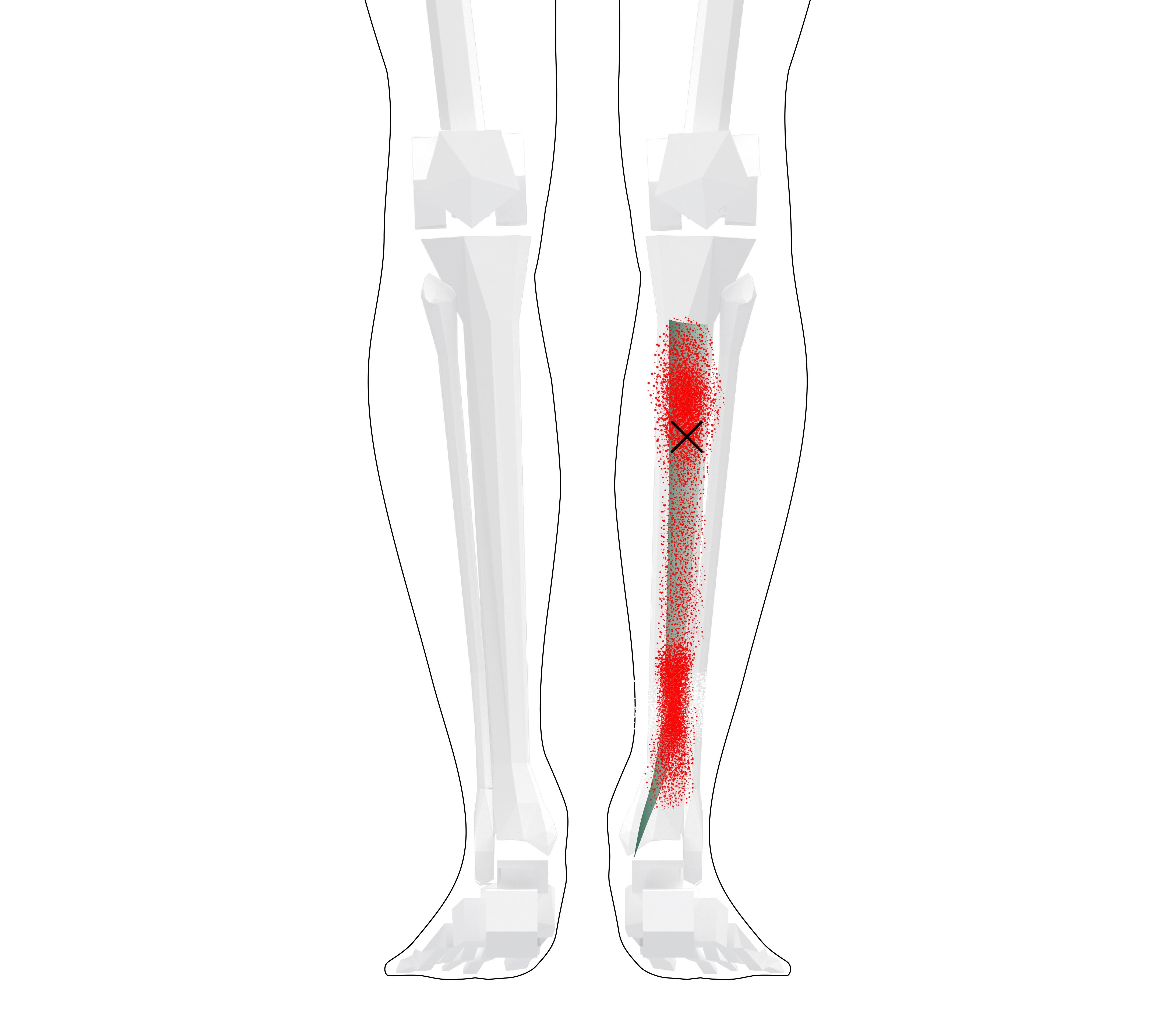 Tibialis Posterior Trigger Points