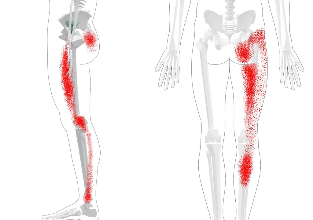 Gluteus Minimus Trigger Points Overview Self Treatment