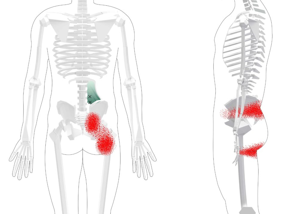 Quadratus Lumborum Trigger Points Overview Self Treatment