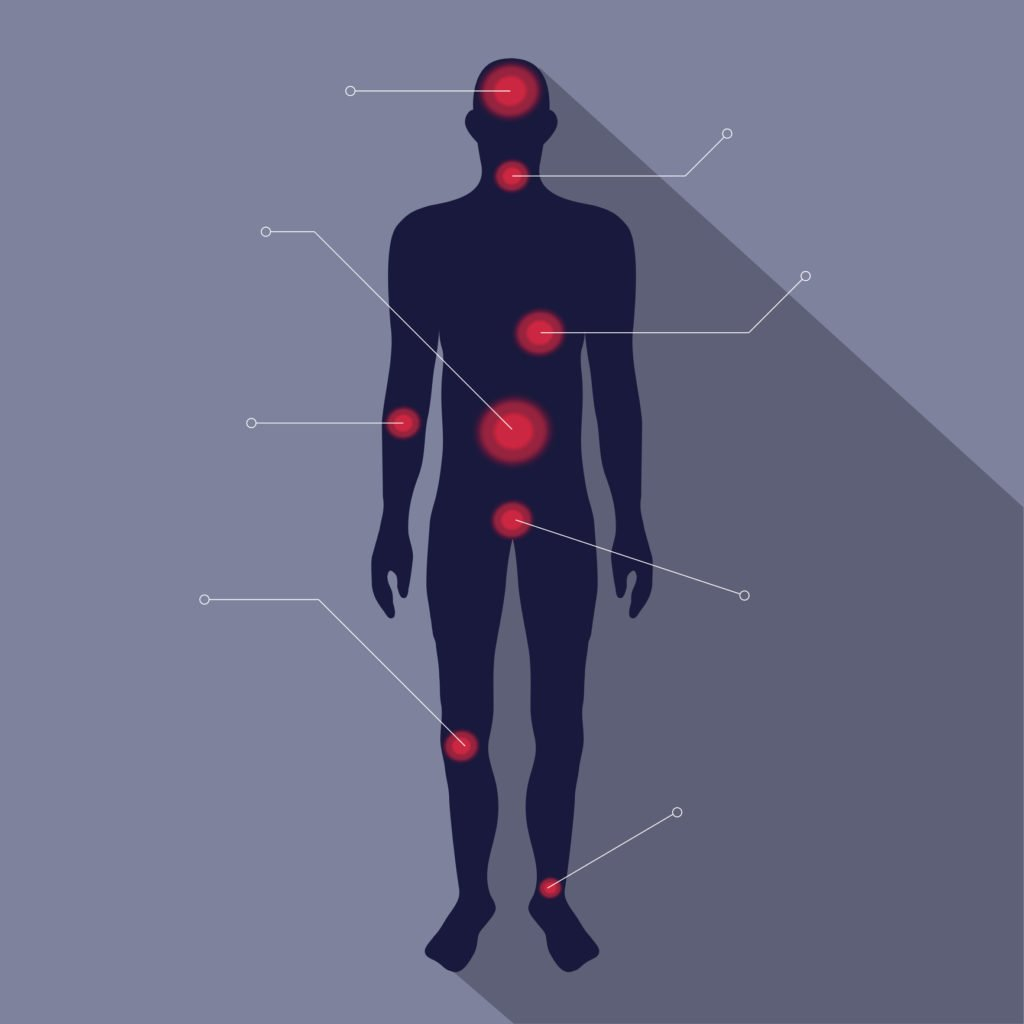human body layout with big red pain points